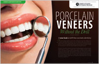 No-prep Procelain Veneers - Dear Doctor